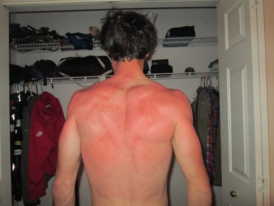 Noah's Sun Burnt Back